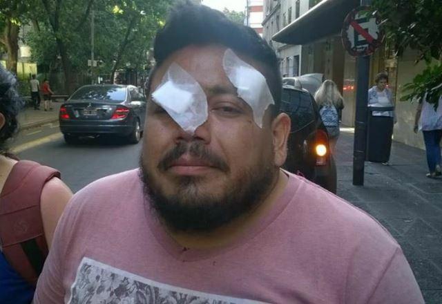 Es docente y quedó ciego de un ojo por una bala de goma en el operativo en el Congreso